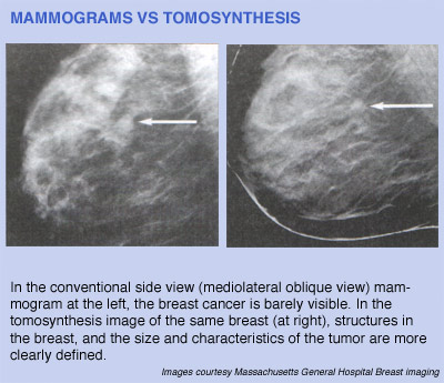 ge healthcare digital breast tomosynthesis Introduction digital breast tomosynthesis offers novel imaging of the breast,  where sections of the breast are reconstructed from multiple projection views.